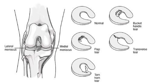 types-of-torn-meniscus